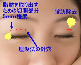 取り 瞼 脂肪